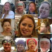 Webové stránky dívky jménem Shalon s AVM tváře